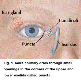 blocked tear duct treatment at Kids Eye Care of Maryland